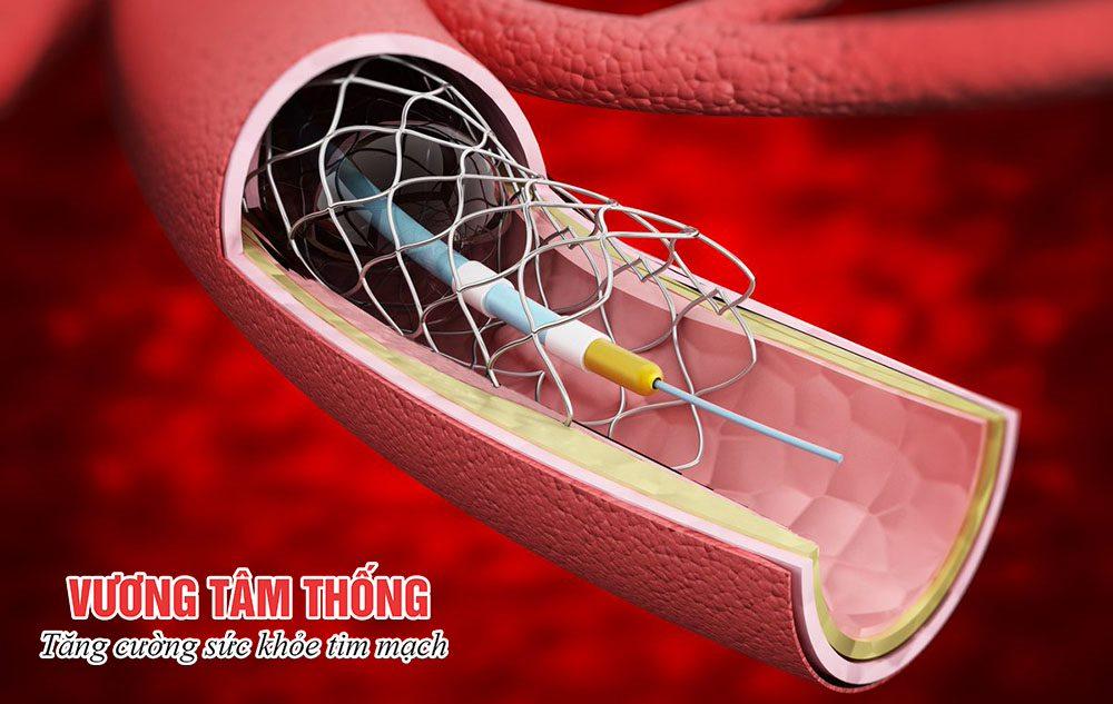 Đặt stent mạch vành bao nhiêu tiền? – Tư vấn từ chuyên gia Tim mạch